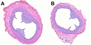 Vascular gene therapy with apolipoprotein (apo) A-I reduces atherosclerosis. Section of rabbit carotid artery treated with control vector.